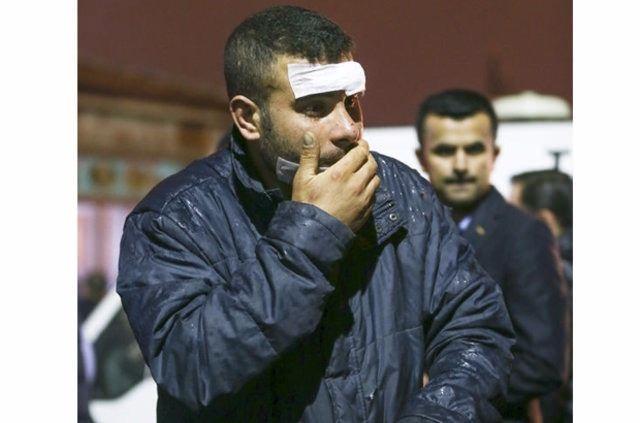 Ankara'da ölen ve yarananların yürek yakan hikayeleri 6