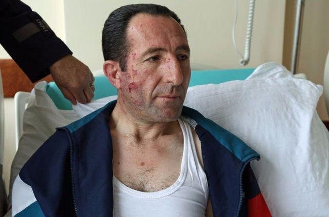 Ankara'da ölen ve yarananların yürek yakan hikayeleri 9