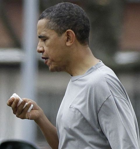Obama'nın dudağı patladı! 1