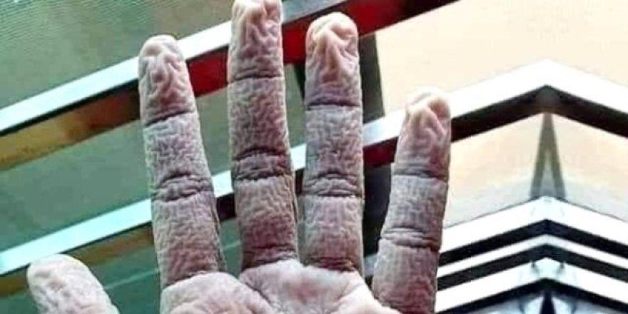 Çapa'da görevli doktorun elinin görüntüsü gündem oldu