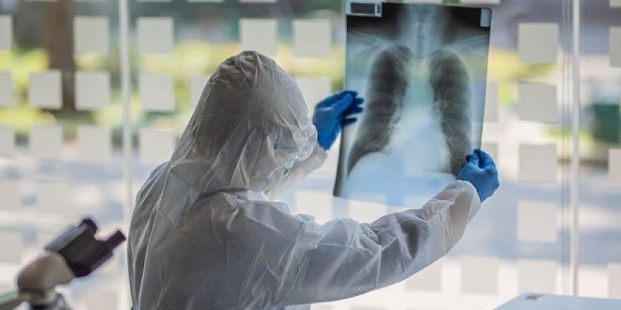 Özel hastanelerde koronavirüs vurgunu! Günlüğü 10 bin liraya yoğun bakım odası...