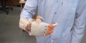 Lise öğrencileri, 15 yaşındaki kıza protez el geliştirdi