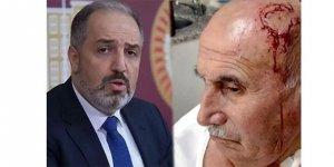 AK Partili vekilden saldırıya uğrayan amca için Kürtçe mesaj